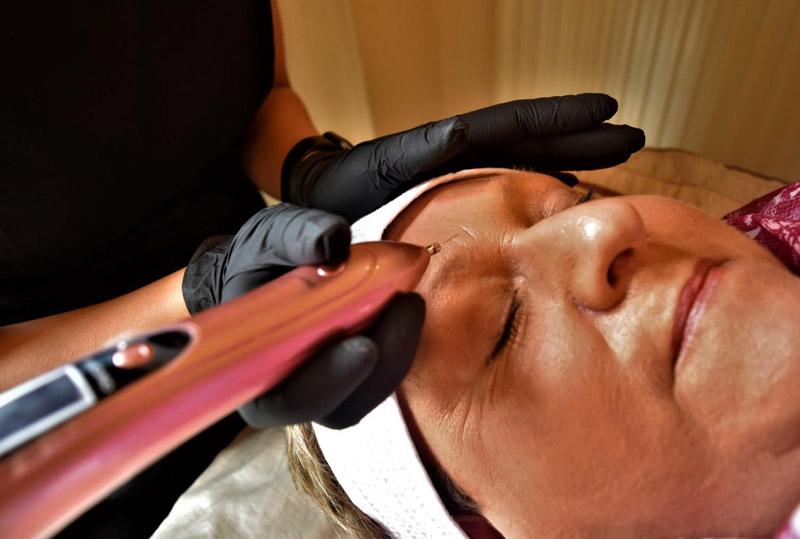 Fibroblast Skin Tightening Plasma